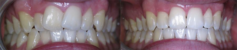 Voor en na de behandeling met een Invisalign Beugel